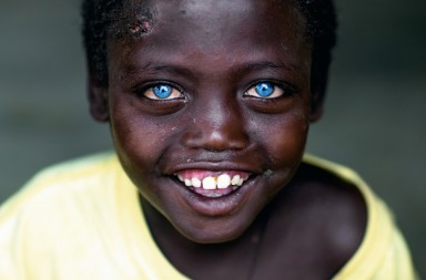 JINKA, ETHIOPIA - MARCH 18: Smiling ethiopian boy called abushe with blue eyes suffering from waardenburg syndrome, omo valley, jinka, Ethiopia on March 18, 2016 in Jinka, Ethiopia. (Photo by Eric Lafforgue/Art in All of Us/Corbis via Getty Images)