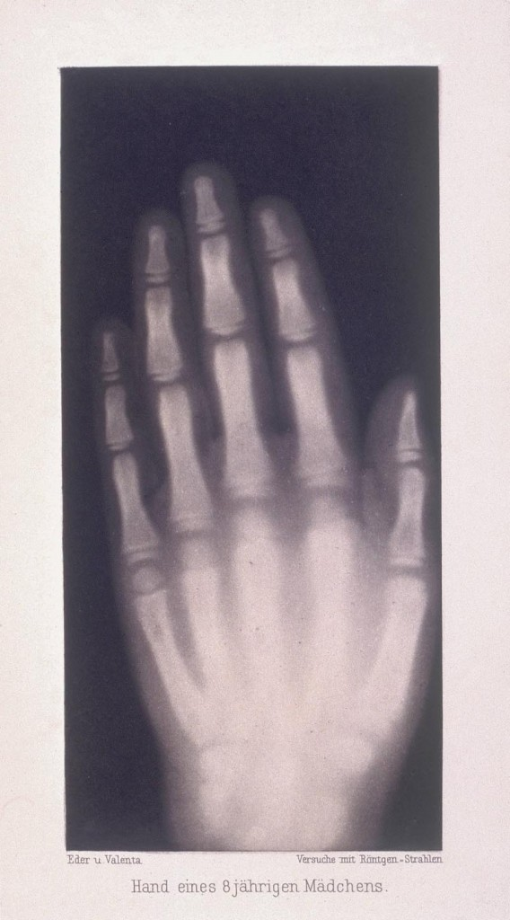 Una de las primeras radiografias realizadas por Wilhelm Conrad Rontgen Hand of an eight year old girl, 1896. A photogravure taken from the original x-ray. In 1895, as Professor of Physics at the University of Wurzburg, Wilhelm Conrad Rontgen was experimenting with a Crookes' radiometer (cathode ray tubes), invented in 1875. He noticed that when cathode rays struck the end of a discharge tube, rays of a new kind were emitted, capable of penetrating matter. On 22 December 1895 he took the first x-ray, an image of the ringed hand of his wife Bertha. He was awarded the first Nobel Prize for physics in 1901. Hand of an eight year old girl, 1896.
