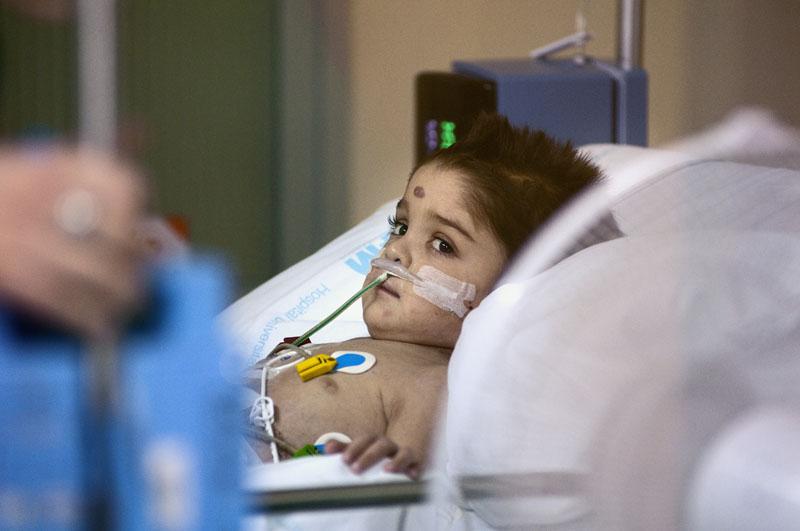 actualidad, trasplantes, antes y despues, xlsemanal (8)