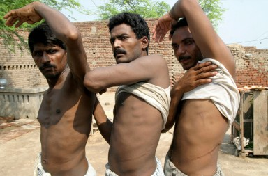 Mohammad Khalid (L), Mohammad Ijaz (C) and Liaqat show scars left on their bodies after they sold their kidneys in Bhalwal area of the Sargodha district July 10, 2006. Unlike many parts of the world, including neighbouring India, there is no law in Pakistan banning the trade in organs. Picture taken July 10, 2006.  To match feature PAKISTAN KIDNEYS  REUTERS/Asim Tanveer   (PAKISTAN) - GM1DTGBCNJAA