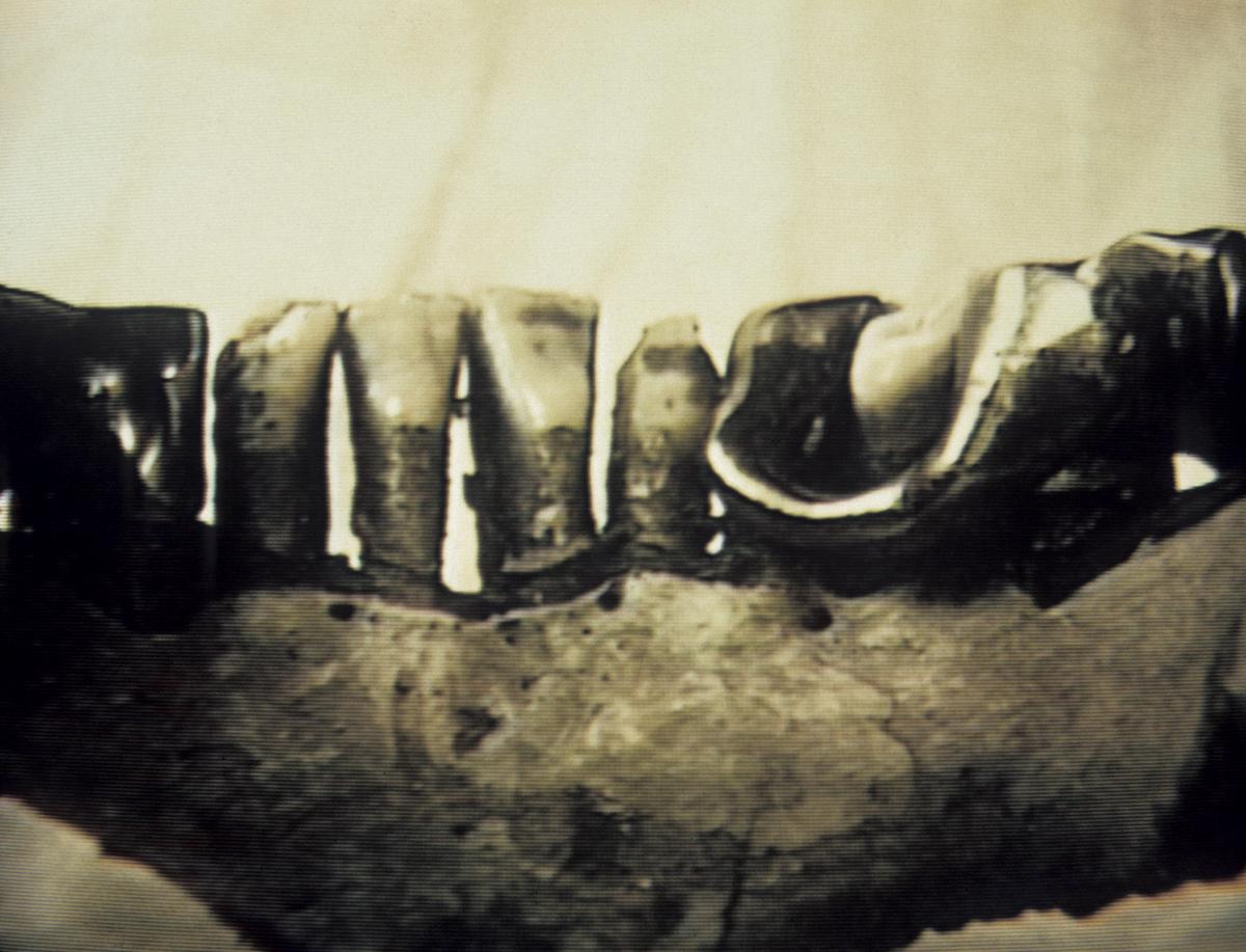 los restos de hitler, mandibula autentica (2)