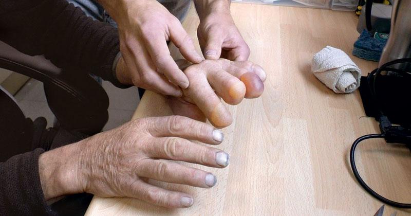 dedos ranulph fiennes