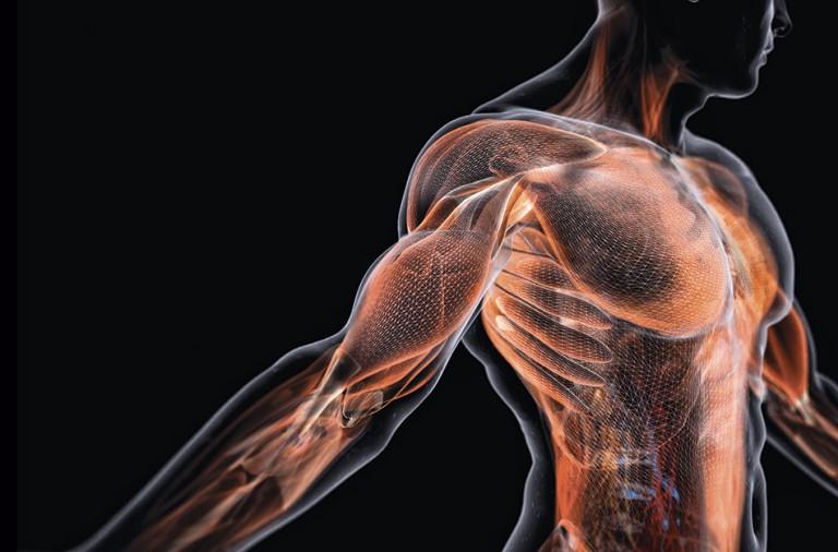 Crónico afecciones que muscular causan dolor