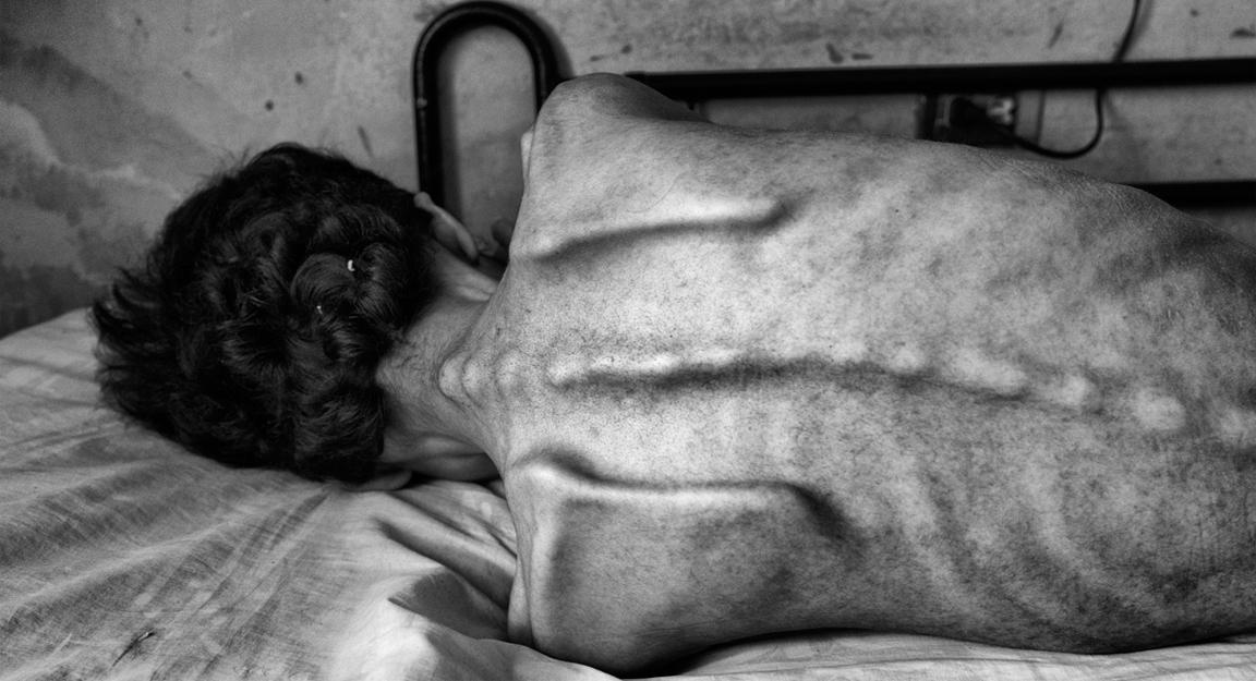 Hambre en Venezuela: crónica de una agonía