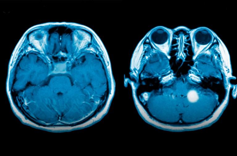 Detectar para prueba cancer de contraste
